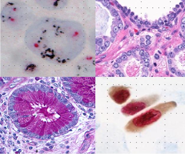 Introducción a la Anatomía Patológica   Aulario Roche