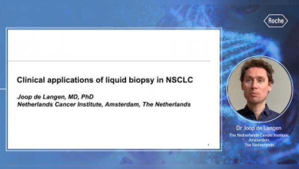 Aplicaciones clínicas actuales de la Biopsia Líquida en el cáncer de pulmón de células no pequeñas