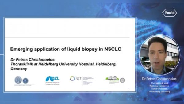 Aplicaciones clínicas emergentes de la Biopsia Líquida en el cáncer de pulmón de células no pequeñas