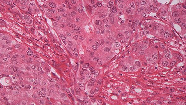 Introducción a la Anatomía Patológica