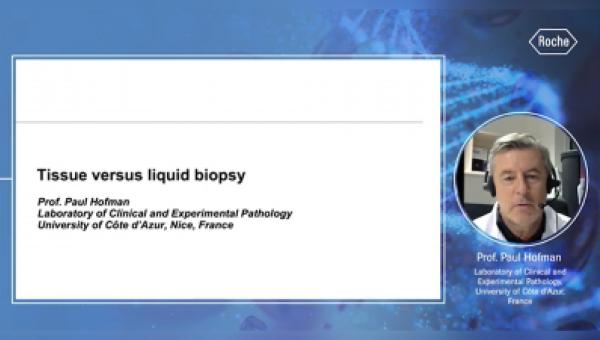 Biopsia de tejido contra Biopsia Líquida